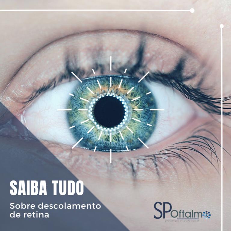 Saiba tudo sobre descolamento de retina