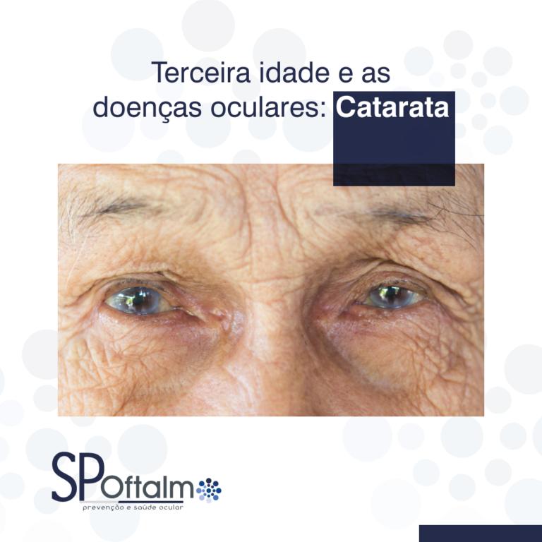 Terceira Idade e as doenças oculares: Catarata